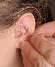erekcijos sutrikimo gydymas aurikuliarine akupunktūra