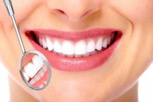 Dantų balinimas Panevėžyje