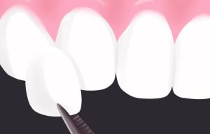 Dantų laminatės panevežyje