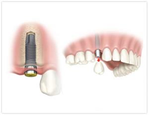 Dantų protezavimas Panevežyje